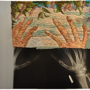 Embroidered x-rays